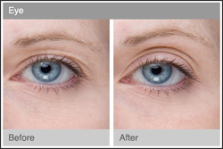 NEW-SPA--EYE-TREATMENT-s